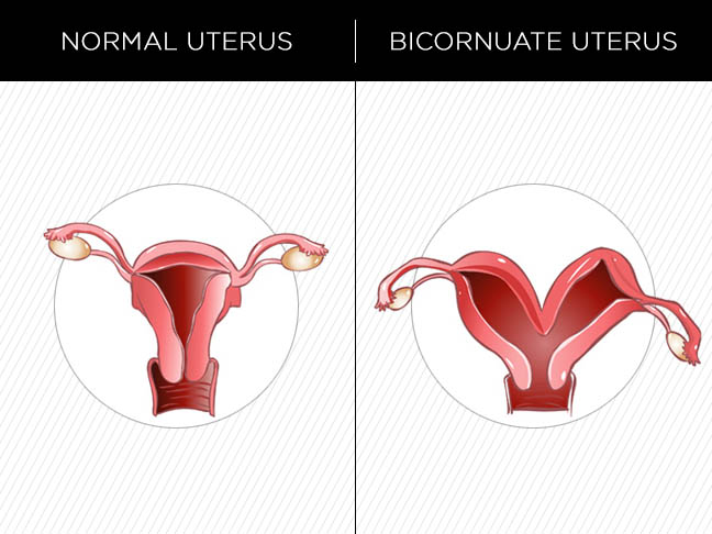 Pictures of heart shaped uterus